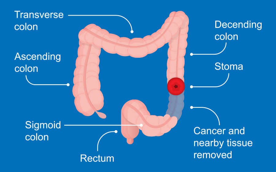 Understanding Colon Cancer Screening